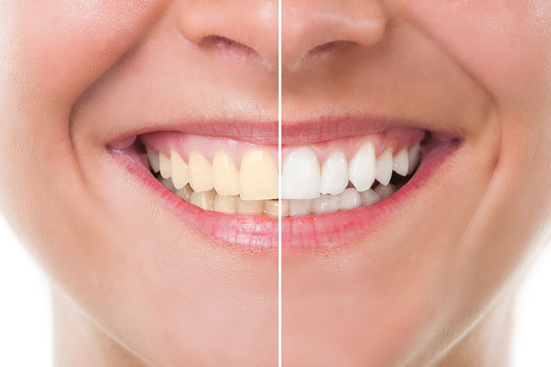 Teeth Whitening - Sam's Dental Office and Orthodontics, Fresno Dentist